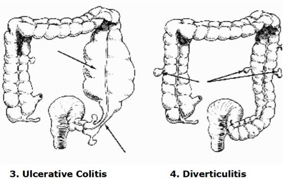 colon3