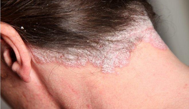 psoriasisof the scalp