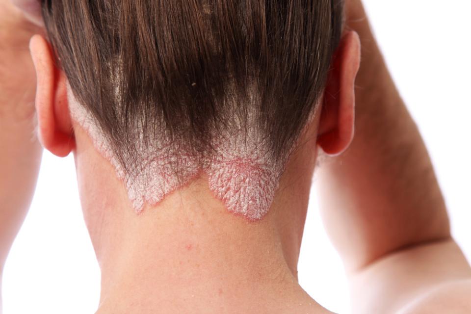 Scalp-Psoriasis
