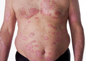 Plaque Psoriasis | The Natural Psoriasis Treatment Program